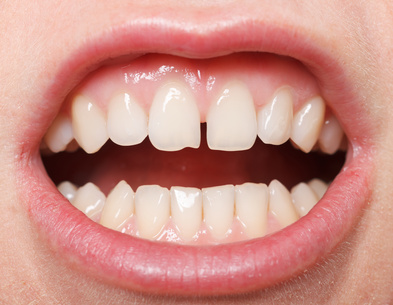 Get rid of gaps between teeth, santa monica, beverly hills, pacific palisades, brentwood, ca