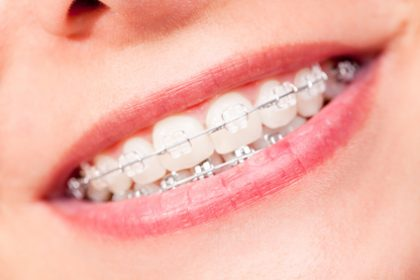 Options to straighten teeth, santa monica dentist