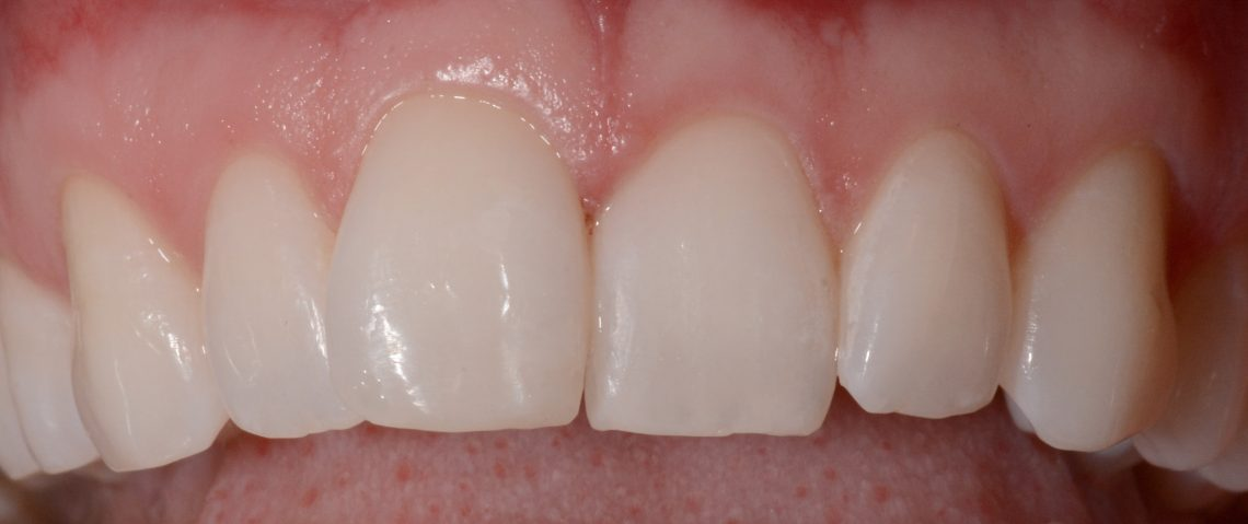 small crack in tooth no pain