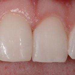 Broken Tooth Bonding - After