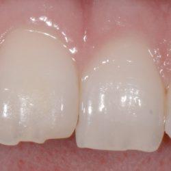 Broken Tooth Bonding - Before