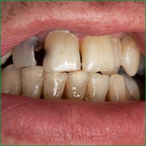 dental-hygiene-santa-monica-california