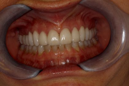Full Mouth Reconstruction - After