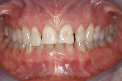 Full Mouth Reconstruction - Before