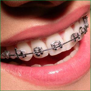 dental-metal-braces