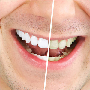 professional teth whitening, santa monica, beverly hills, pacific palisades, brentwood, ca