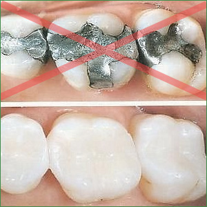 metal-free-fillings
