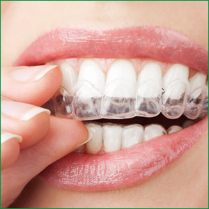 dental-clear-braces