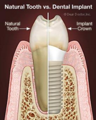 implant-1