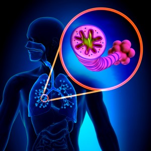 Stock photo COPD lungs