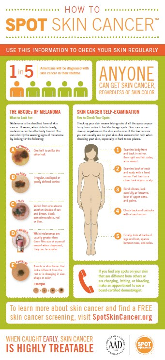 AmerAcacDerm.how-to-spot-skin-cancer-infographic-thumbnail
