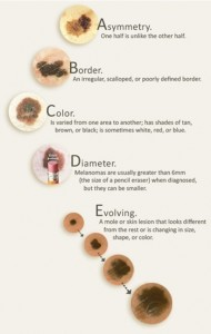 The American Academy of Dermatology's guide to suspicious moles