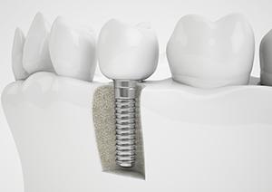 implantspic1