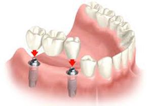 implantspic3