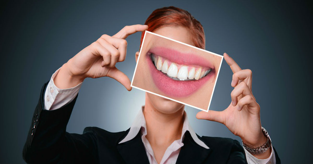 Is teeth whitening right for you