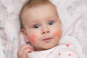 baby with rash on cheeks