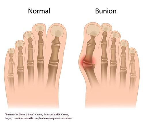 bunion_vs_normal_foot