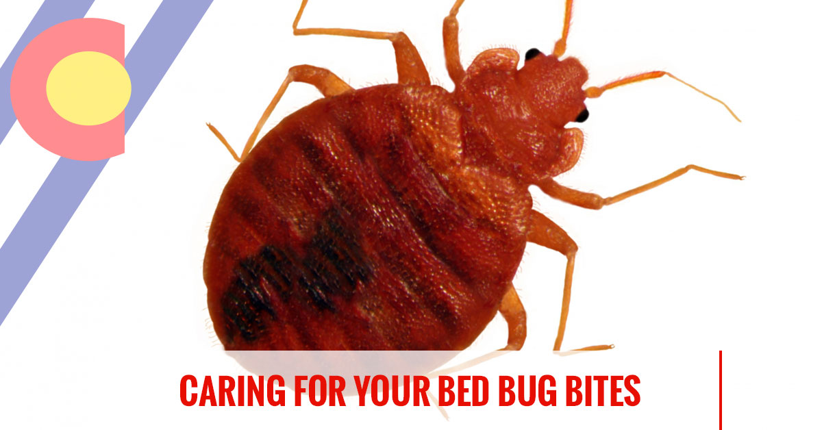 Caring for your bed bug bites