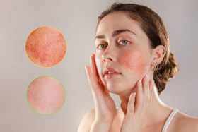 Someone with rosacea on their cheeks.