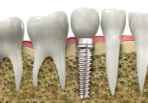 Natural looking dental implants Sterling