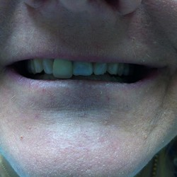 Concord Dentist Smile Gallery Before 2