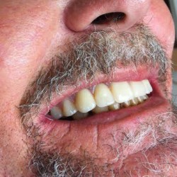 Concord Dentist Smile Gallery After 3