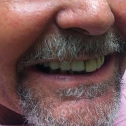 Concord Dentist Smile Gallery Before 3