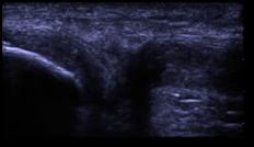 knee_ultrasound