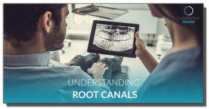 Understanding Root Canals