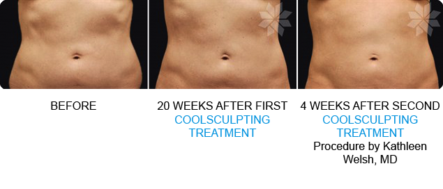non surgical liposuction in loveland