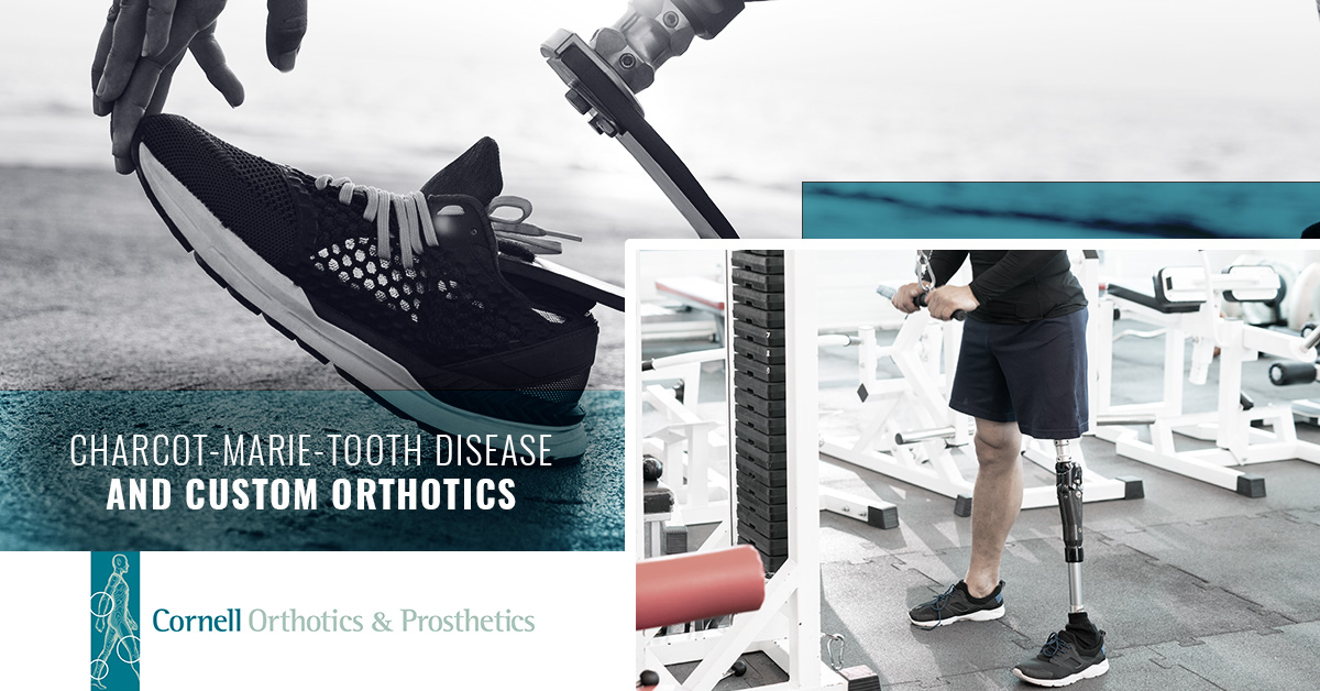 Charcot-Marie-Tooth Disease and Custom Orthotics