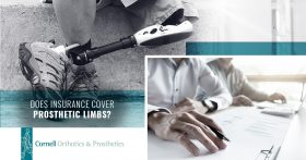 Does Insurance Cover Prosthetic Limbs
