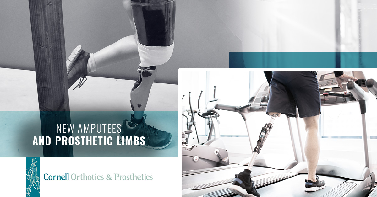 New Amputees and Prosthetic Limbs