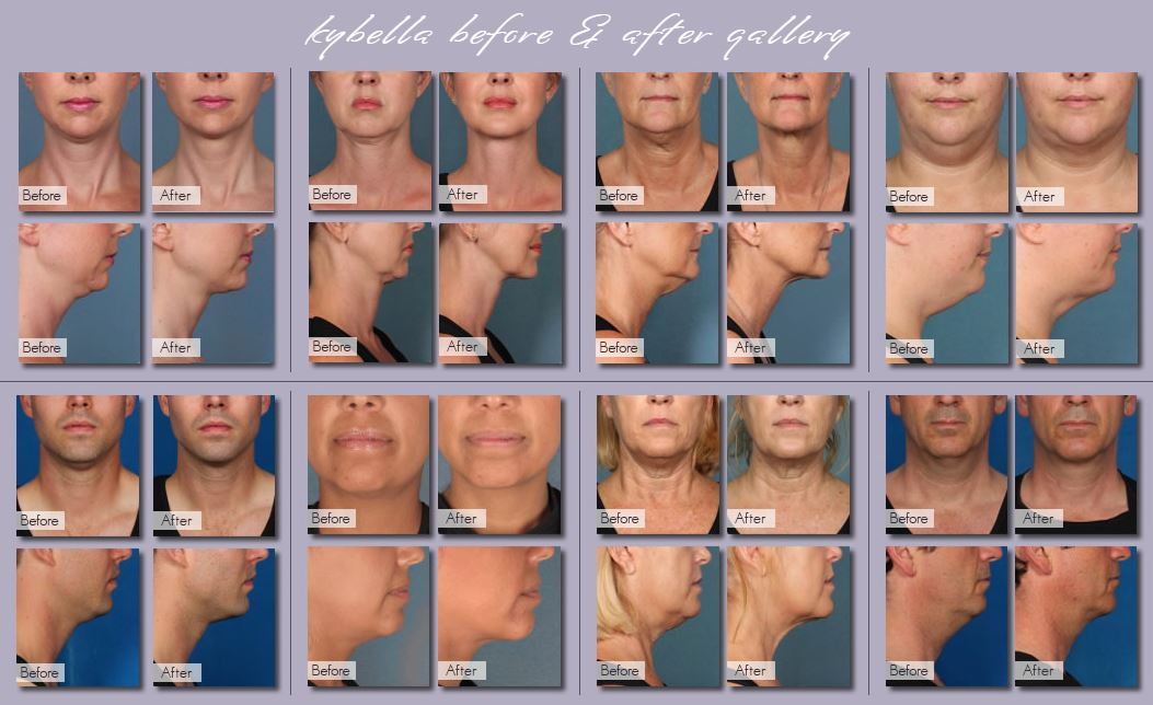 KYBELLA PHOTOS
