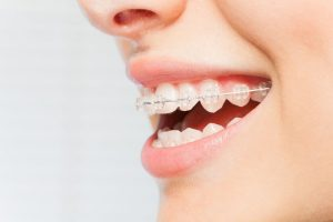 Clear Braces-Orthodontic Treatment Orthodontist in DC