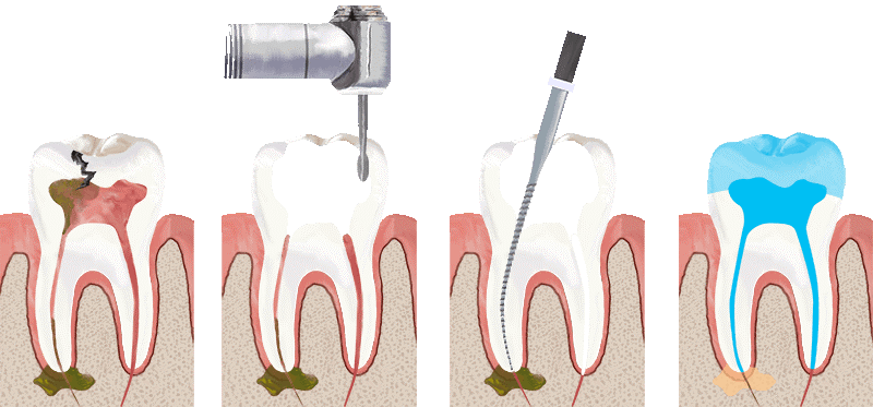 Root Canal-Endodontist DC 1