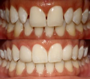 Veneers Before and After - Cosmetic Dentistry DC