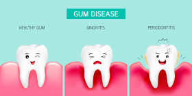 GUM DISEASE AND DIABETES 1
