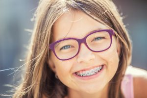 What Is The Best Age For Braces 1