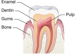 Tooth Sensitivity 1