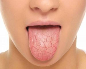 basic tips for dry mouth