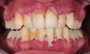 seniors and gum disease 1