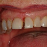 Veneers Tacoma Washington