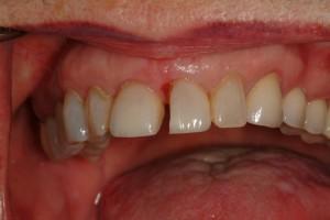 Dentistry Tacoma WA