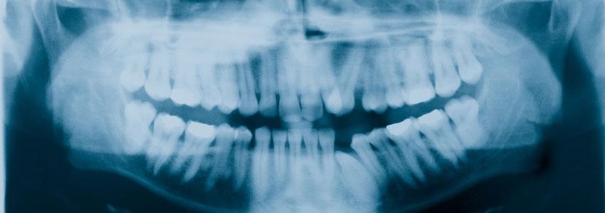 digital dental x-rays