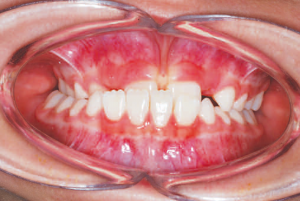 Figure 1. Patient at 8 years of age before early interceptive treatment with a severe underbite and crossbite. Actual Patient of Dr. Edgren