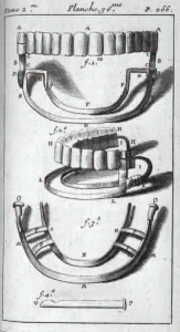 Diagram of dentures from Pierre Fauchard's Le chirurgien dentiste ou traité des dent.