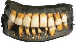 Washington's dentures, that he wore to hide his edentulousness, were made from multiple materials. The last remaining complete set of Washington's dentures are in the collection at Mount Vernon.