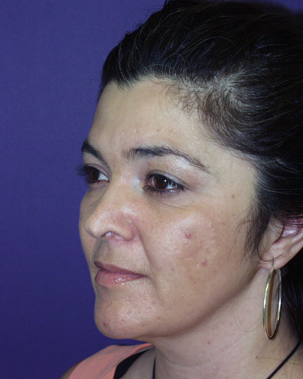 Cosmetic Surgery Charity Northern Colorado   Plastic Surgery