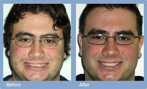 invisalign before and after newton invisalign ma orthodontics